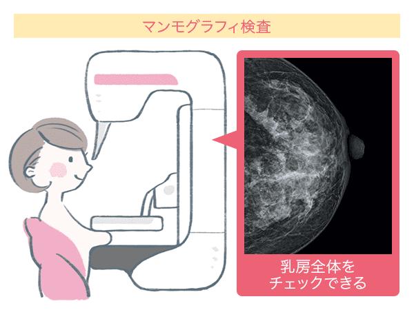 マンモグラフィ検査