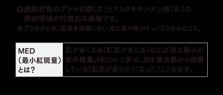 MED(最小紅斑量)とは?