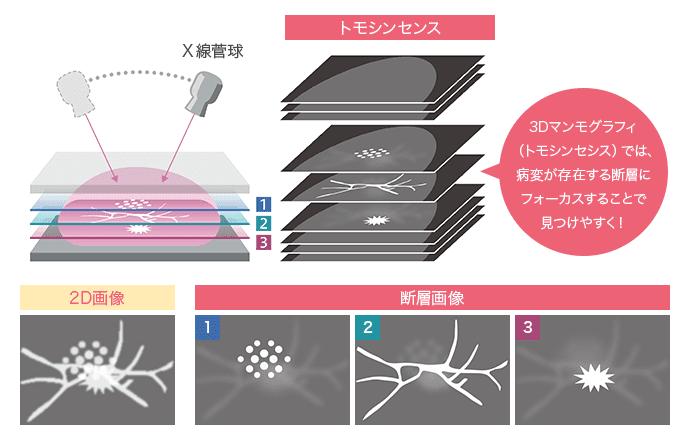 トモシンセンス 2D画像 断層画像